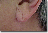 ear_lobe_repair_01_before_web