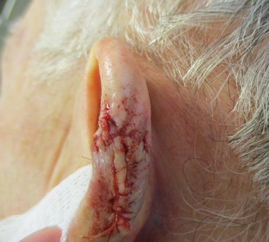 BD Ear Repair