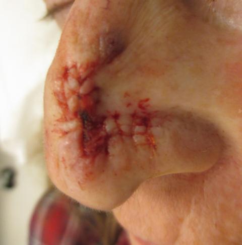 CD Nose Repair