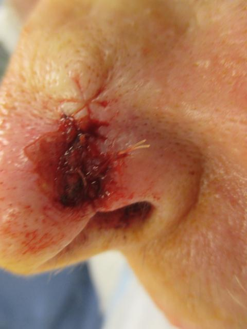 CF Nose Repair