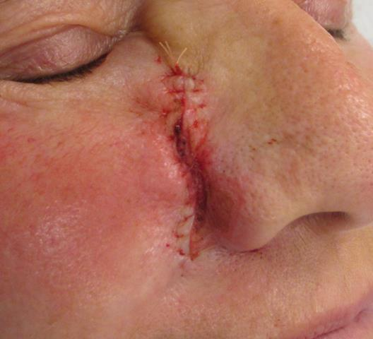 CL Nose Repair