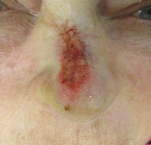 CM Nose Repair