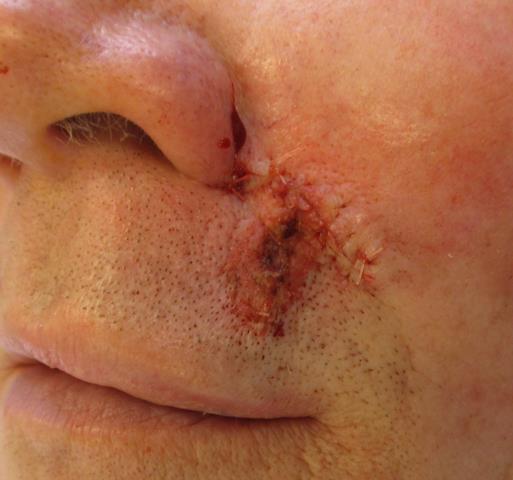 DB Lip Repair