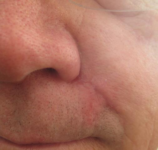 DB lip PO