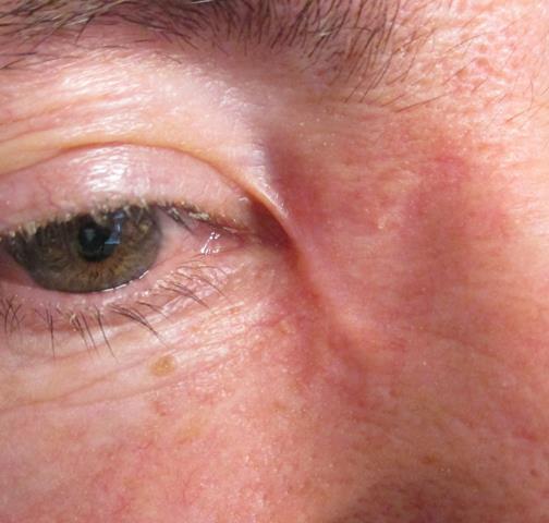 DH Eye PO