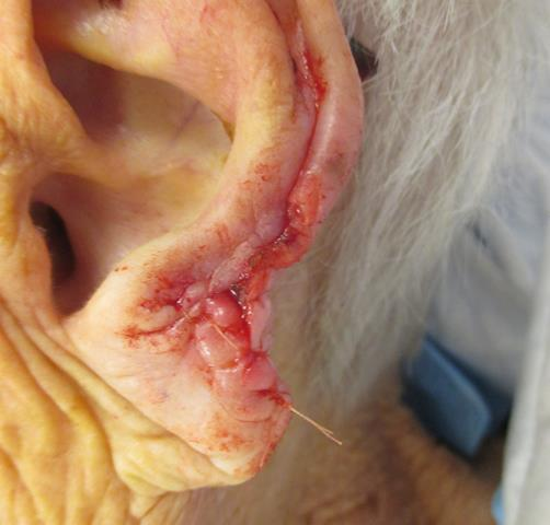 DJ Ear Repair
