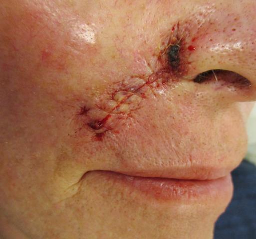 DK Nose Repair