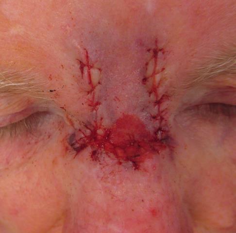 GB Nose Repair