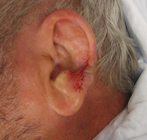 GC Ear Repair