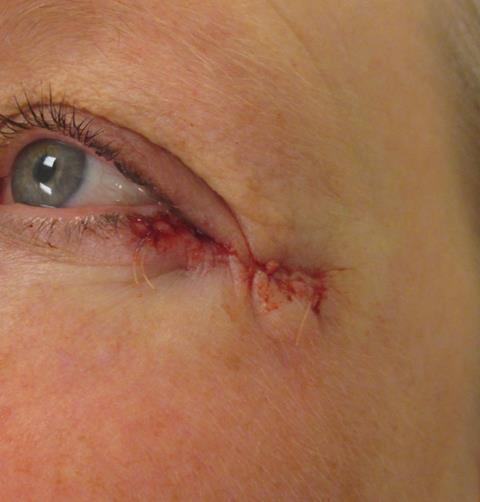 JB Eye Repair
