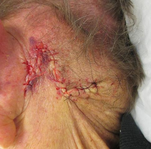 JM neck Repair