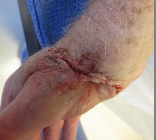 JM wrist Repair