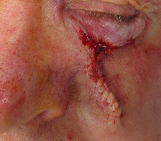 JP eye Repair