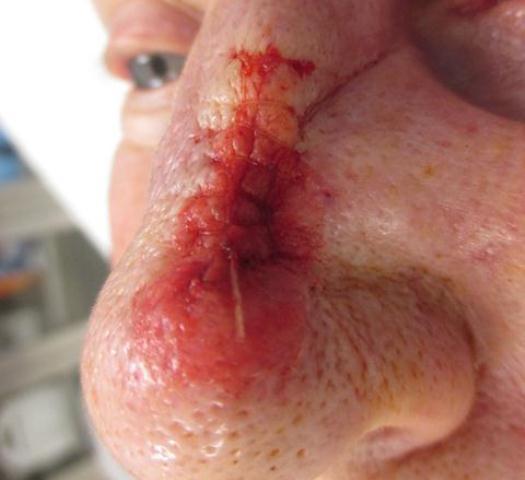 JR Nose Repair