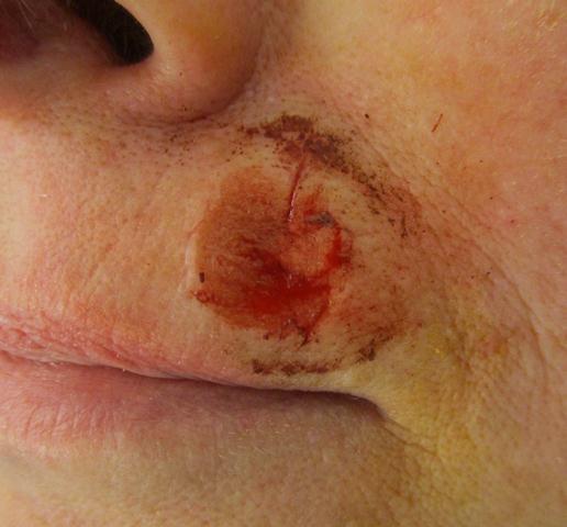 JR2 Lip Repair