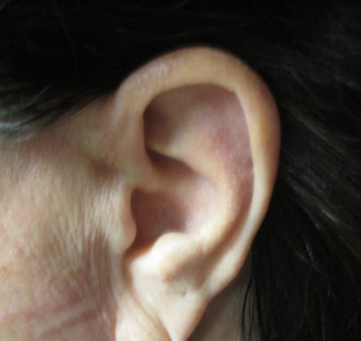 JS Ear PO