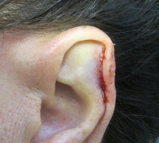 JS Ear Repair