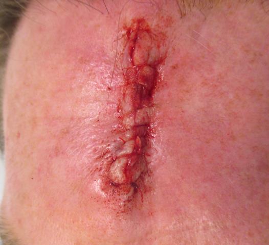 JS Forehead Repair