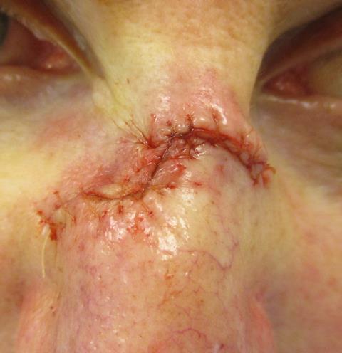 KD Nose Repair