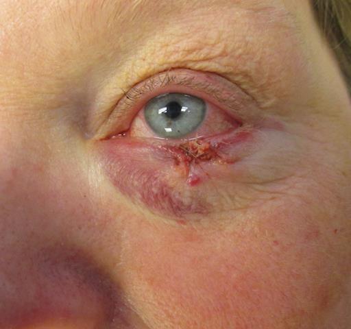 KS eye Repair