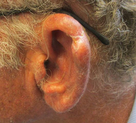 MK Ear PO