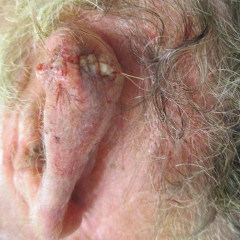 MK Ear Repair