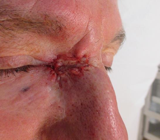 MM Eye Repair