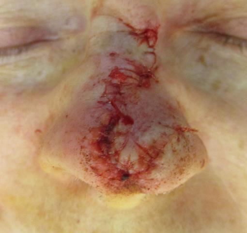 PV Nose Repair
