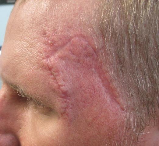 SB Forehead PO