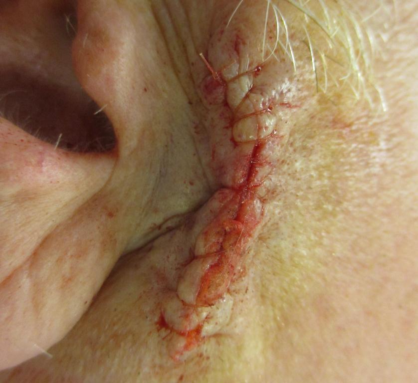 SS Ear Repair