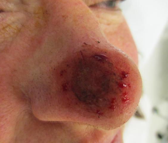 TS Nose Repair Derm